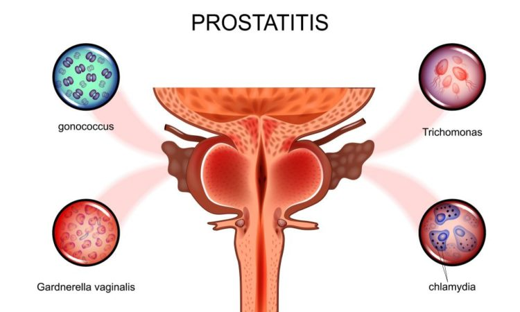 Простатит простата не увеличена рак простатиты у мужчин