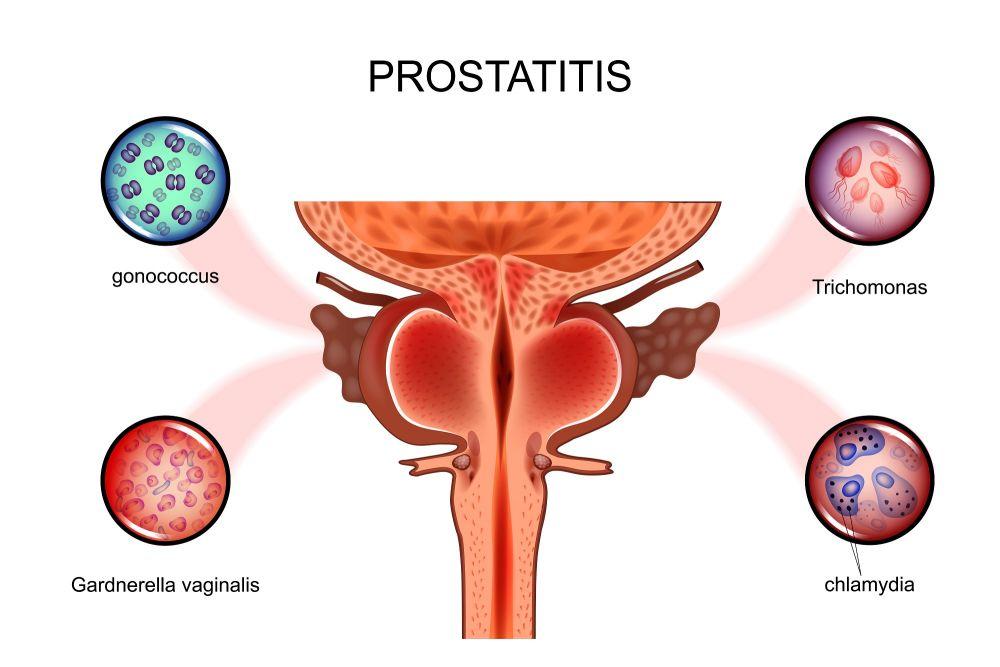 Простатит у него есть выделение полового члена врачи лечащие простатит
