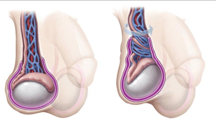 Перекрут (острая ишемия) яичка