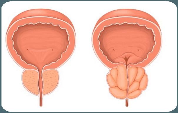 Важное о гиперплазии простаты